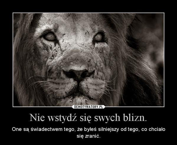 Nie wstydź się swych blizn. – One są świadectwem tego, że byłeś silniejszy od tego, co chciało się zranić.