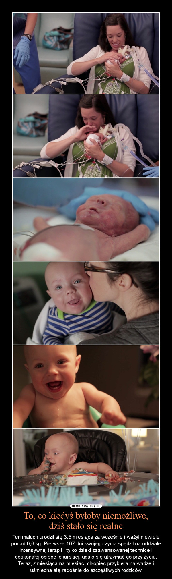 To, co kiedyś byłoby niemożliwe,dziś stało się realne – Ten maluch urodził się 3,5 miesiąca za wcześnie i ważył niewiele ponad 0,6 kg. Pierwsze 107 dni swojego życia spędził na oddziale intensywnej terapii i tylko dzięki zaawansowanej technice i doskonałej opiece lekarskiej, udało się utrzymać go przy życiu. Teraz, z miesiąca na miesiąc, chłopiec przybiera na wadze i uśmiecha się radośnie do szczęśliwych rodziców