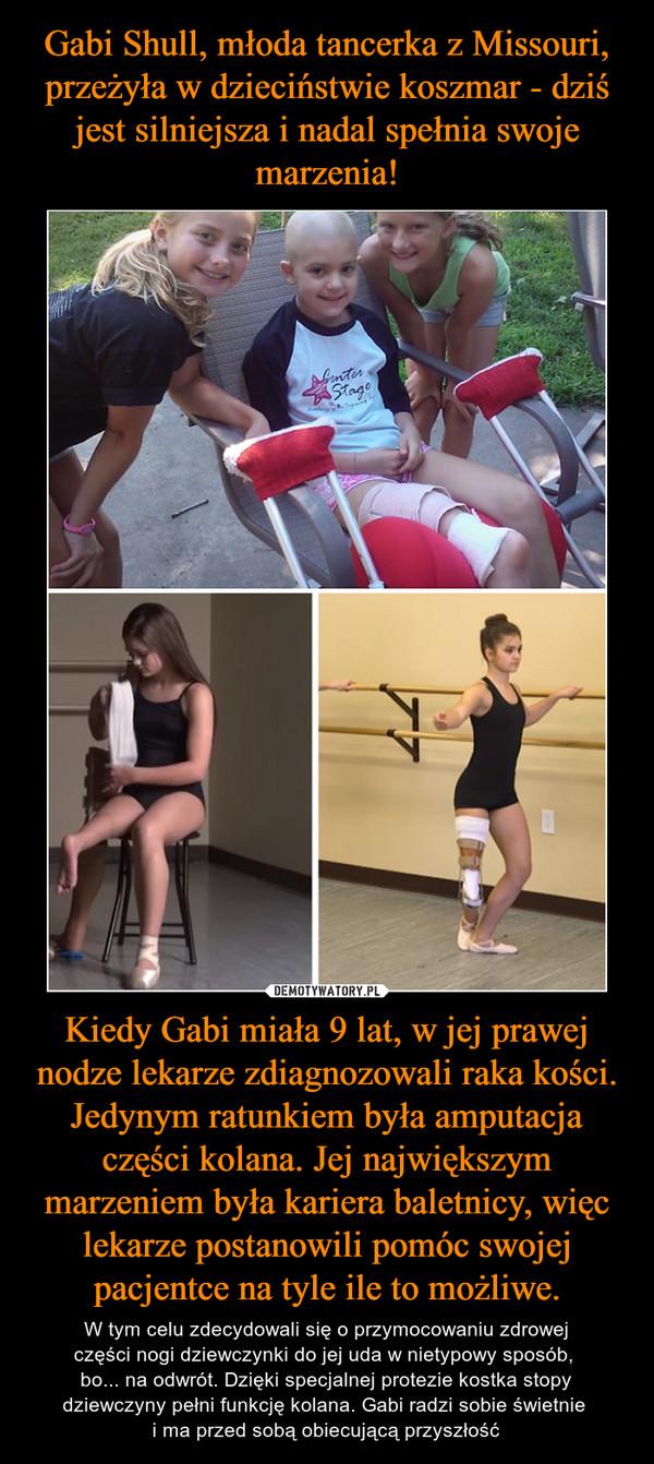 Kiedy Gabi miała 9 lat, w jej prawej nodze lekarze zdiagnozowali raka kości. Jedynym ratunkiem była amputacja części kolana. Jej największym marzeniem była kariera baletnicy, więc lekarze postanowili pomóc swojej pacjentce na tyle ile to możliwe. – W tym celu zdecydowali się o przymocowaniu zdrowejczęści nogi dziewczynki do jej uda w nietypowy sposób, bo... na odwrót. Dzięki specjalnej protezie kostka stopy dziewczyny pełni funkcję kolana. Gabi radzi sobie świetnie i ma przed sobą obiecującą przyszłość