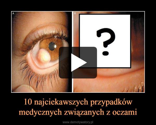 10 najciekawszych przypadków medycznych związanych z oczami –