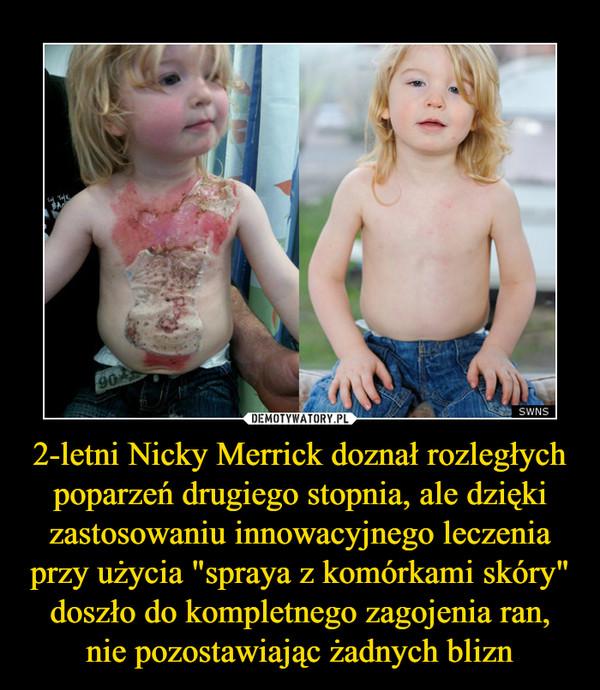 """2-letni Nicky Merrick doznał rozległych poparzeń drugiego stopnia, ale dzięki zastosowaniu innowacyjnego leczenia przy użycia """"spraya z komórkami skóry"""" doszło do kompletnego zagojenia ran, nie pozostawiając żadnych blizn –"""