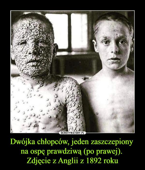 Dwójka chłopców, jeden zaszczepiony na ospę prawdziwą (po prawej). Zdjęcie z Anglii z 1892 roku –