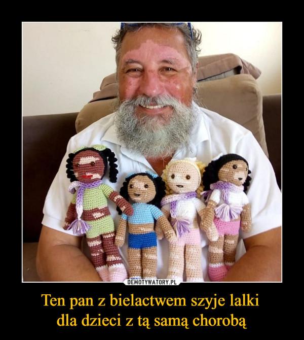 Ten pan z bielactwem szyje lalki dla dzieci z tą samą chorobą –