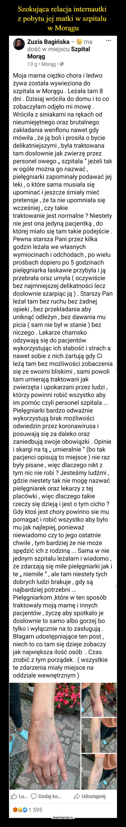 Szokująca relacja internautki  z pobytu jej matki w szpitalu  w Morągu